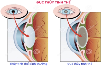 Duc-thuy-tinh-the